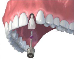 fogaszati-implantacio