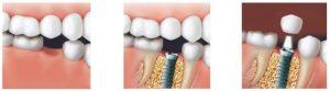 foggyökér implantáció menete